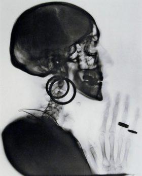 Meret Oppenheim, X-ray of my skull (1964)
